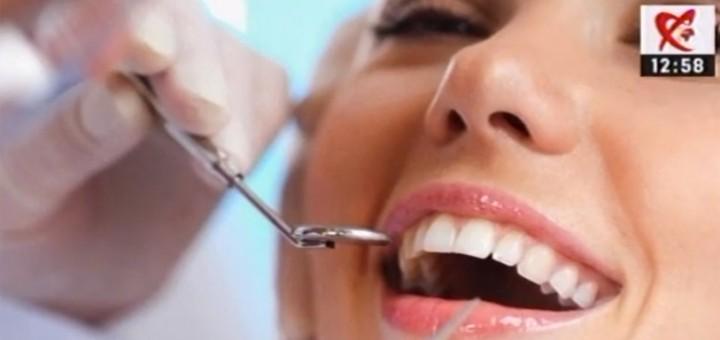 Despre fatetele dentare