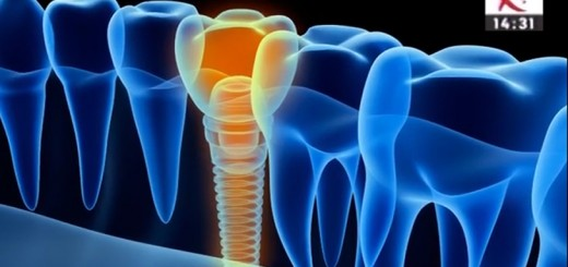 Spot Reluare DSE - Punte versus implant dentar
