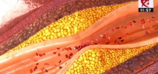 Spot Reluare DSE - Grasimile din alimentatie si sanatatea