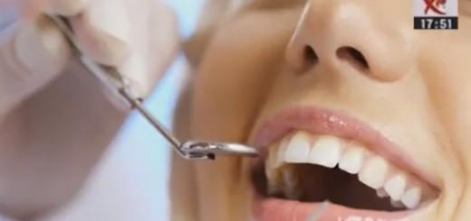 Spot Diferente si Esente - Ce inseamna fatetele dentare