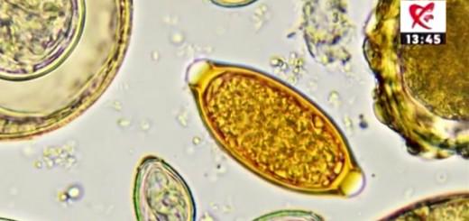 Spot DSE - Paraziti intestinali