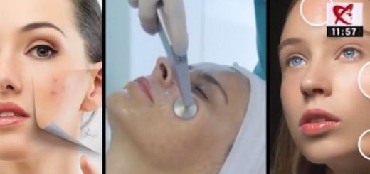 Spot DSE - Despre acnee