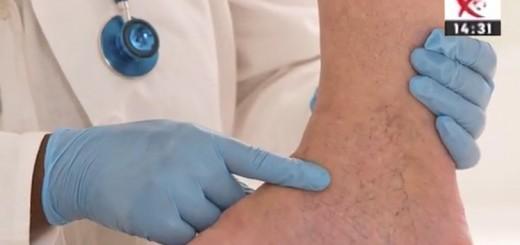 Spot Reluare Diferente si Esente - Recomandari in cazul problemelor de circulatie venoasa