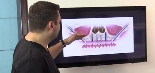 Spot DSE - Ce inseamna implanturile dentare zigomatice - Clinicile Dr. Leahu - Realizator Cecilia Caragea