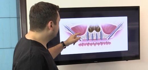 Spot Reluare DSE - Ce inseamna implanturile dentare zigomatice - Clinicile Dr. Leahu - Realizator Cecilia Caragea