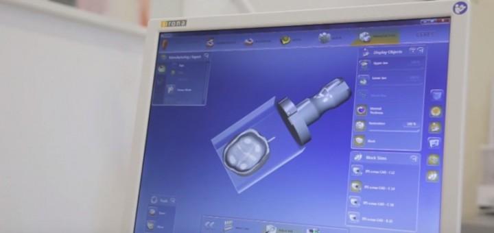 Spot DSE - Noile tehnologii de realizare a coroanelor dentare - Clinicile Dr. Leahu - Realizator Cecilia Caragea